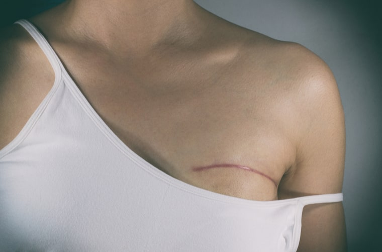 mujer cáncer de mama