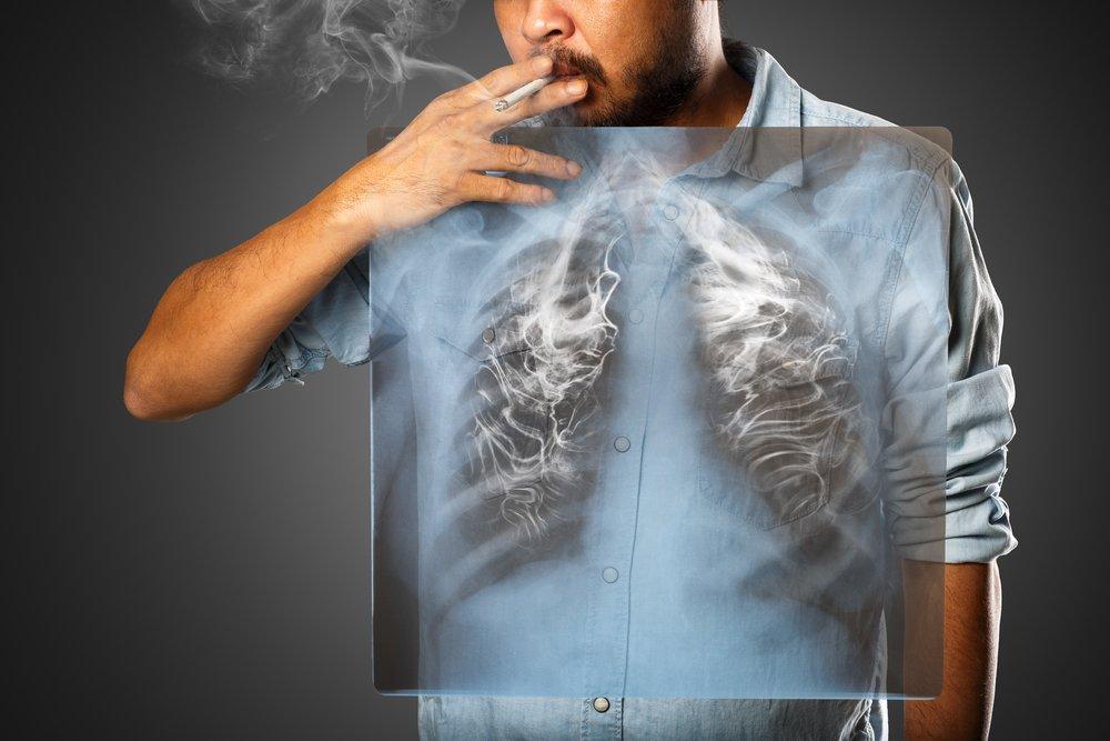 hombre fumando cigarrillo y con cancer