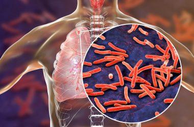 ilustración de tuberculosis