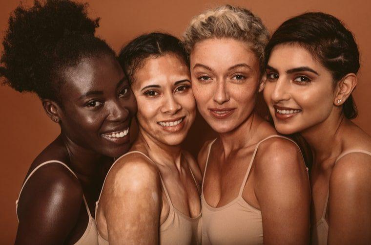 Grupo de mujeres, una de ellas con vitiligo -min