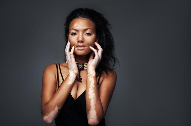 Mujer con vitiligo