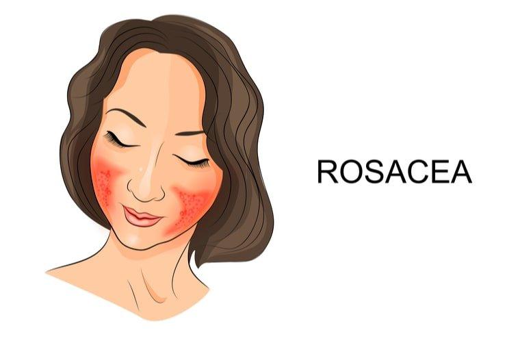 Ilustración de mujer con rosácea