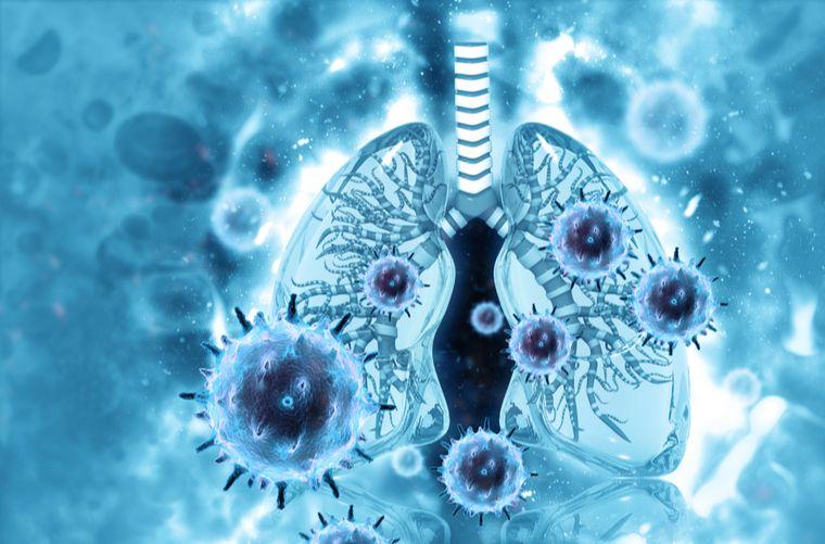 Foto concepto neumonía o pulmonía