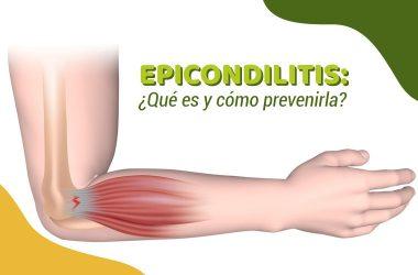Cuál es el mejor tratamiento para la epicondilitis