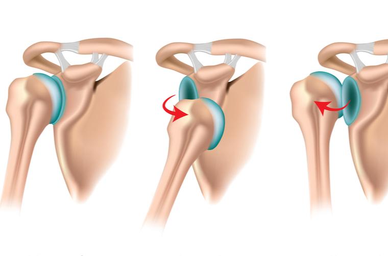 Causas y síntomas de un hombro dislocado